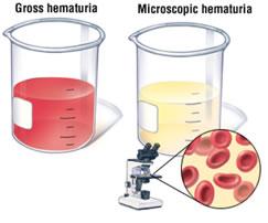 Ematuria, quando nelle urine è presente del sangue